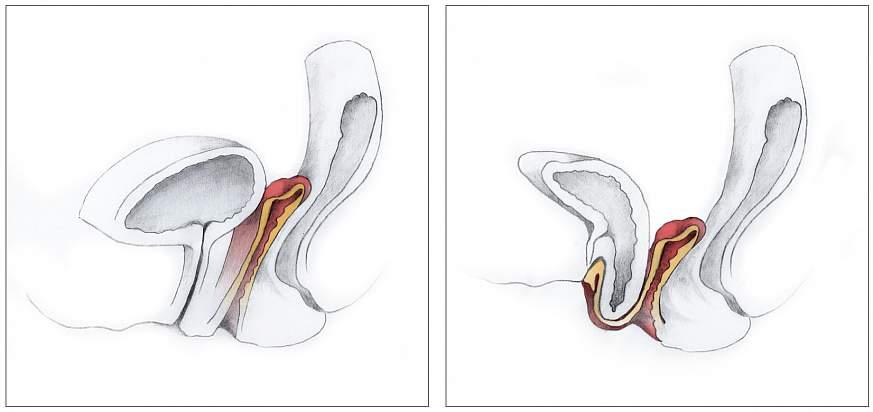 Pelvic organ prolapse.