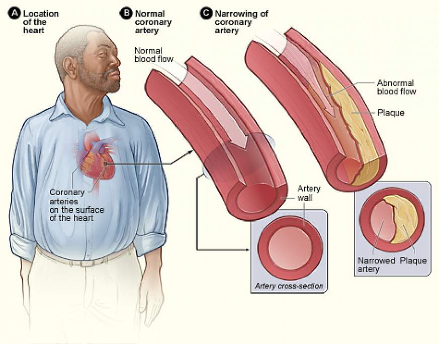 Hiv infected men at increased risk for heart disease large study plaque buildup in arteries ccuart Choice Image