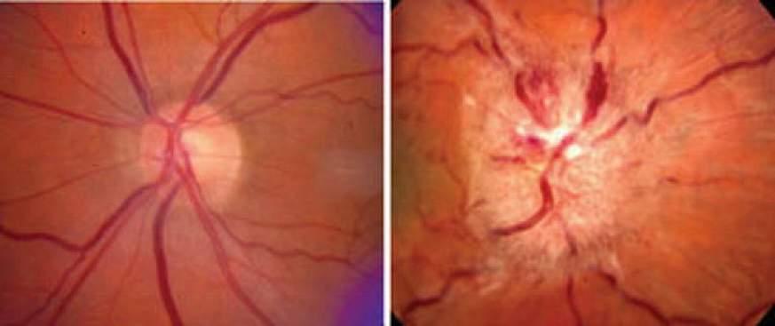 Optic nerve images.
