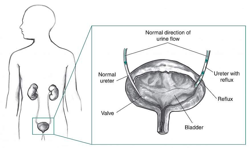 Diagram of the bladder.