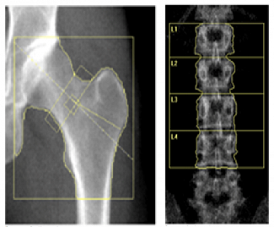 Hip and spine xrays.