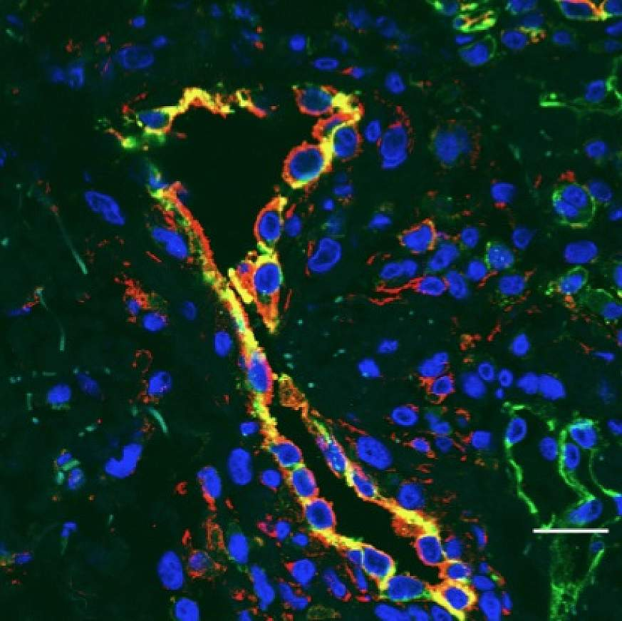 Photo showing inflamed blood vessels