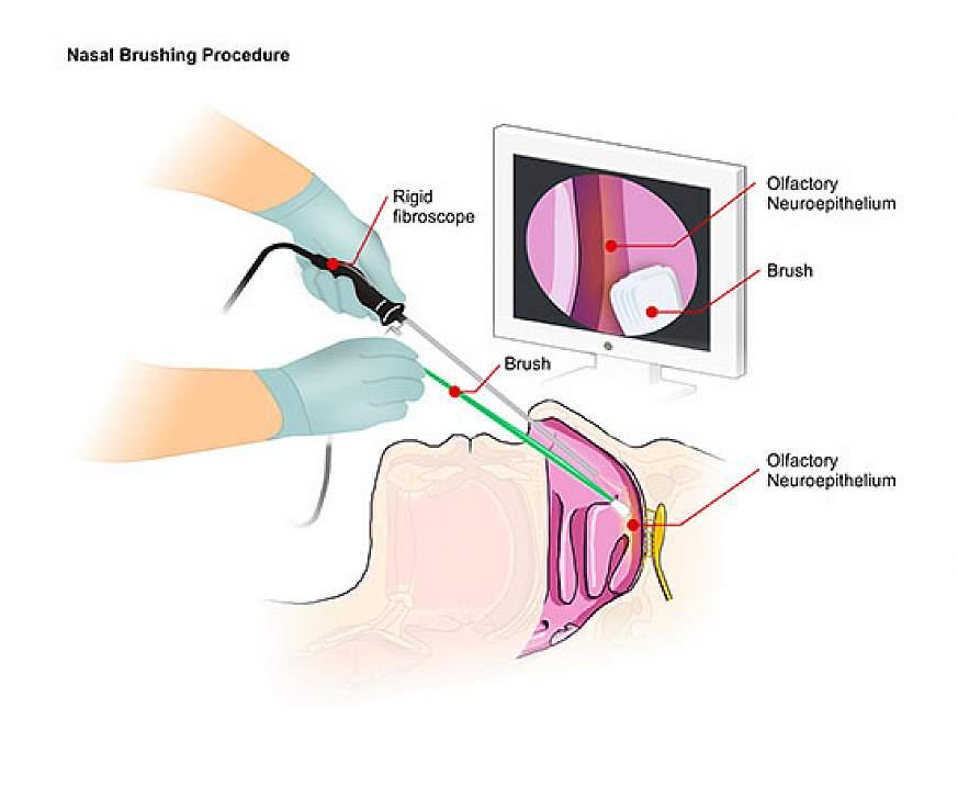 Illustration of nasal brushing technique