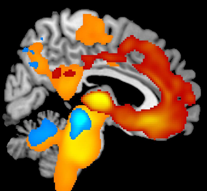 Image showing severe brain tissue loss