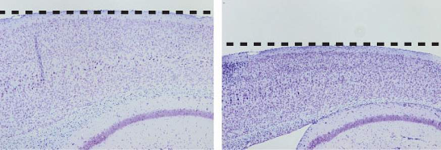 Image showing the effects on mouse cortex of an Alzheimer's-causing mutation