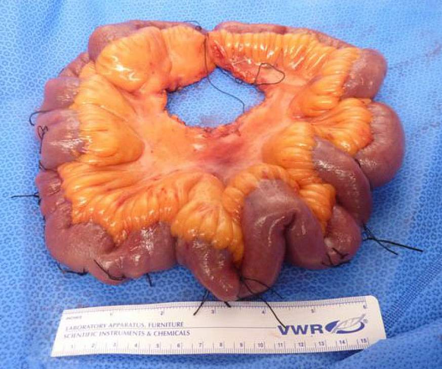 Image of small intestine with tumors