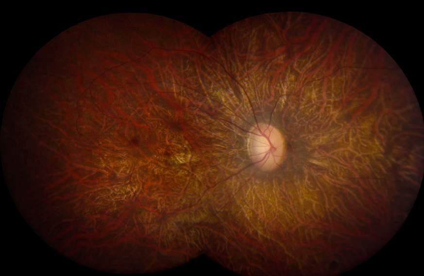 Image of a retina.