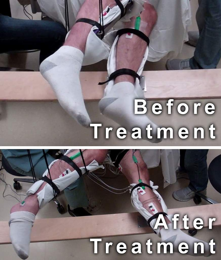 Image showing legs before and after treatment