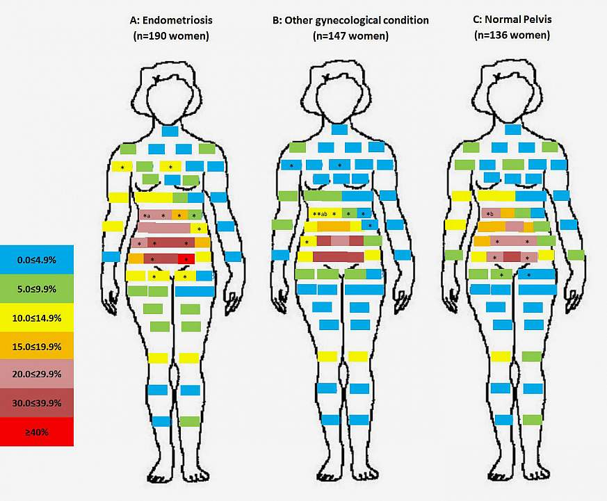 Pelvic Pain May Be Common Among Reproductive