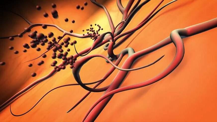 Illustration of ruptured blood vessels