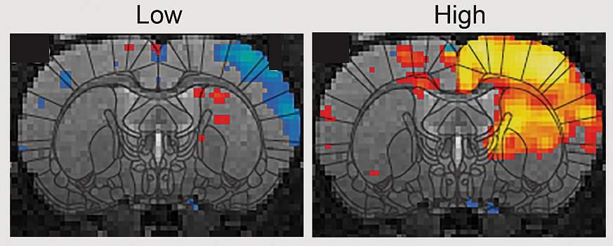 fMRI activity brain scans
