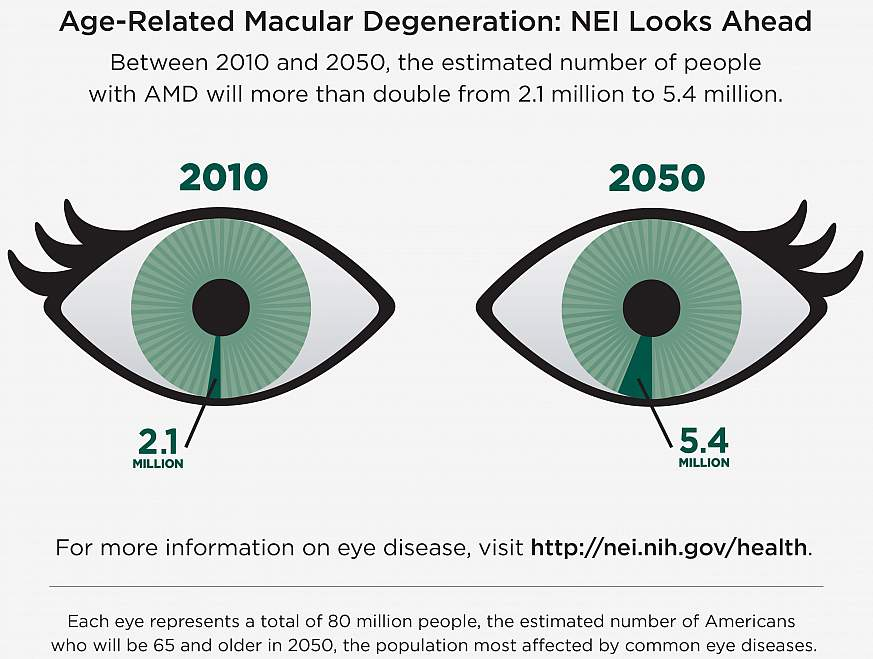 International Study Reveals New Genetic Clues To Age Related Macular Degeneration National Institutes Of Health Nih
