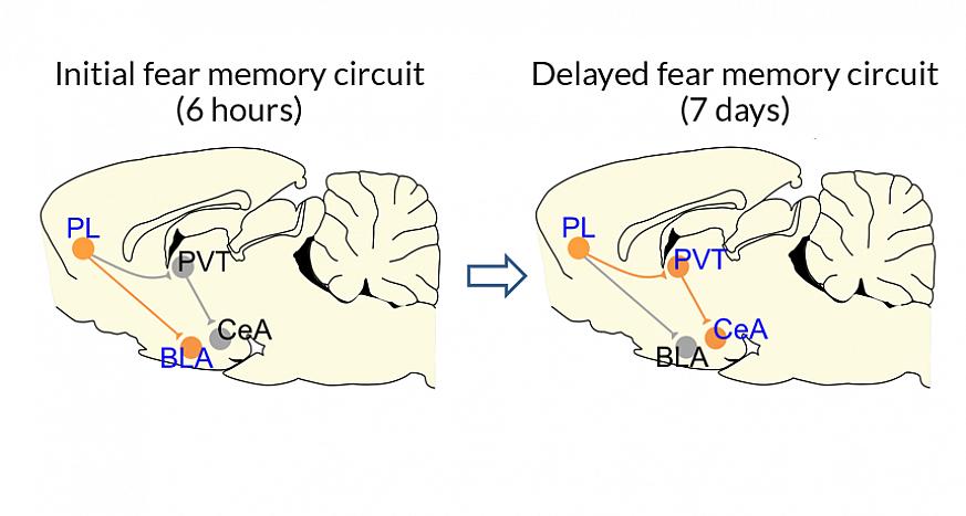Illustration of brain pathways.