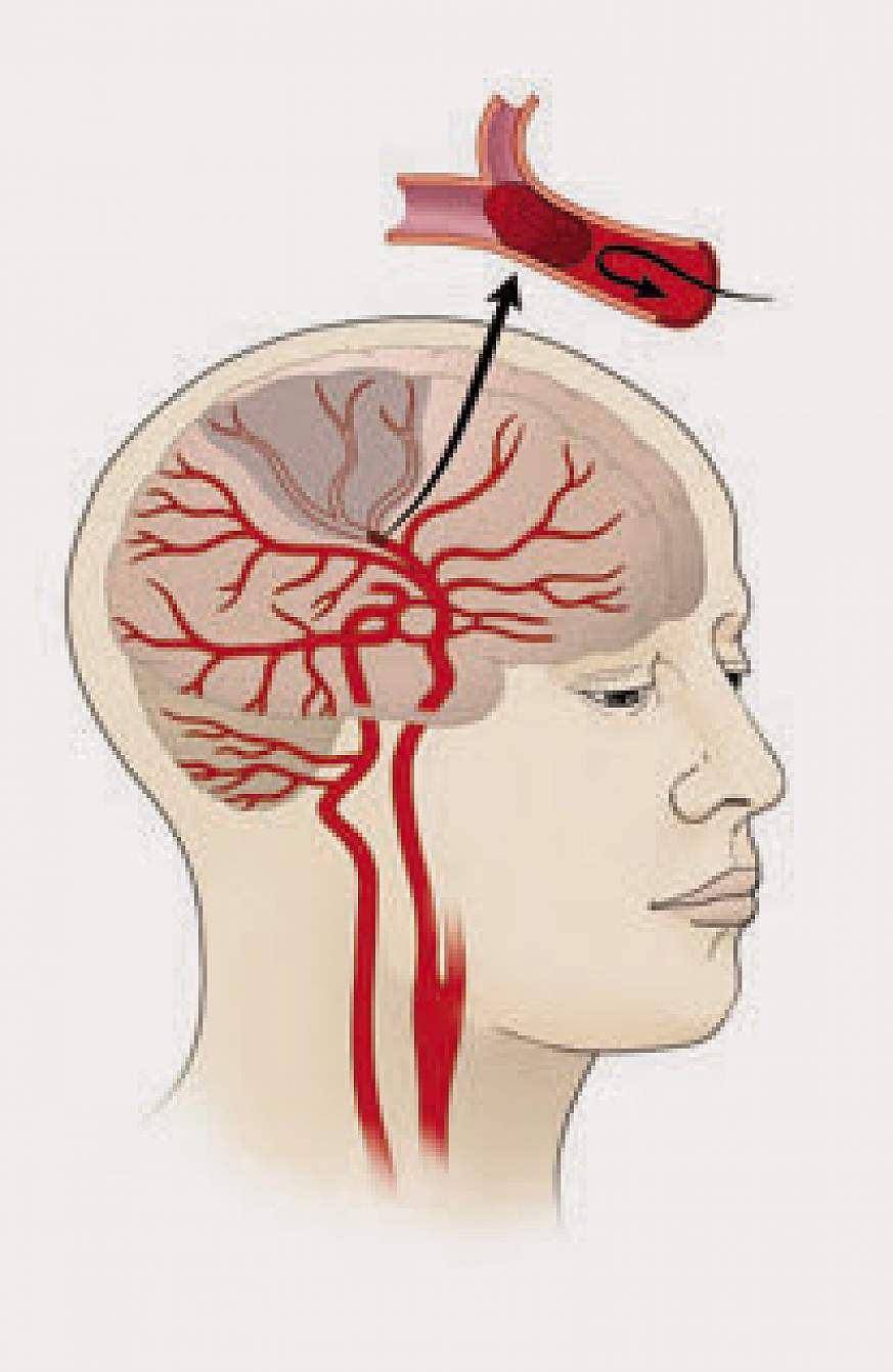 Illustration of an ischemic stroke
