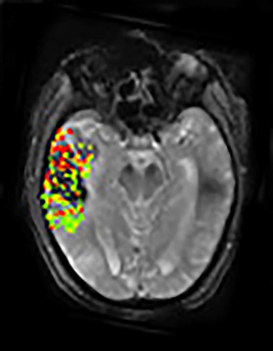 New Imaging Method May Predict Risk Of Post Treatment Brain Bleeding
