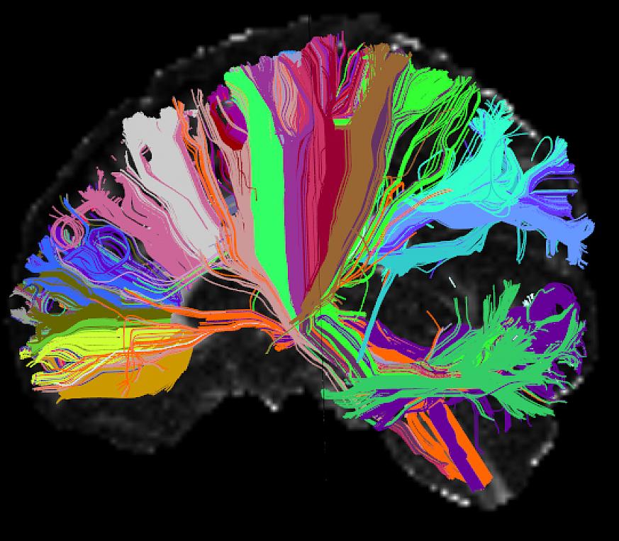 Diffusion image of a human brain