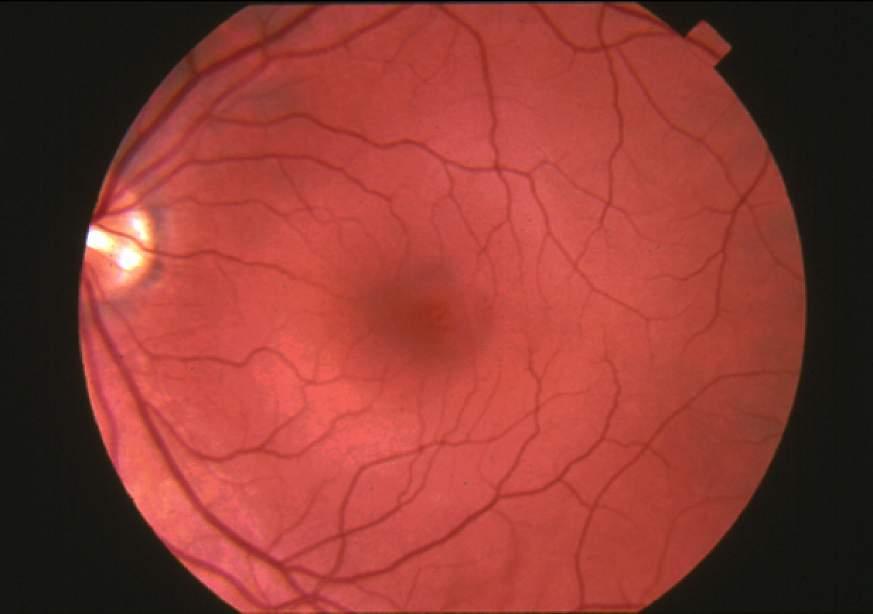 Normal Retina  Fundus photograph-normal retina.