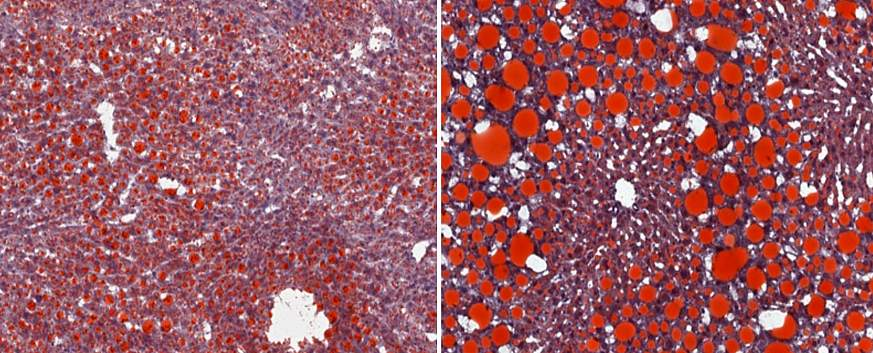 Images of mouse liver cells under magnification