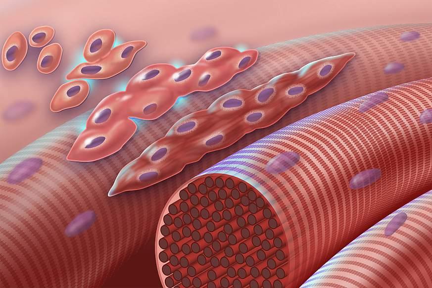 Illustration of normal myoblasts