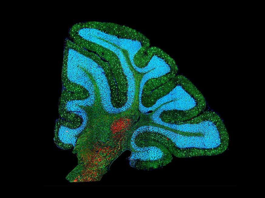 Mouse brain with Niemann-Pick disease type C1