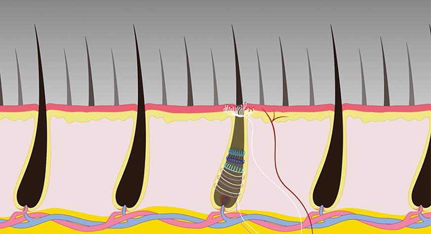 Illustration of hair follicles