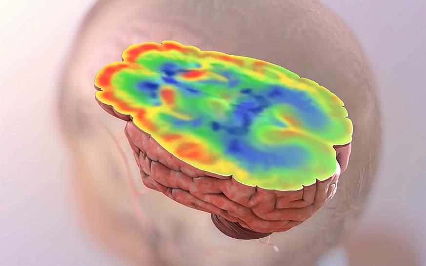 Illustration of elevated glucose levels in the brain.