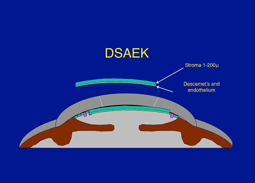 illustration of corneal transplantation