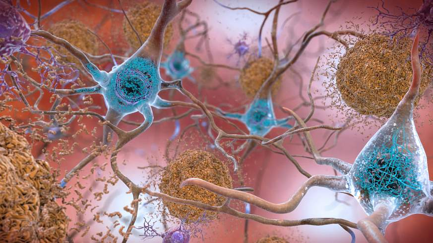 Beta-Amyloid Plaques and Tau in the Brain