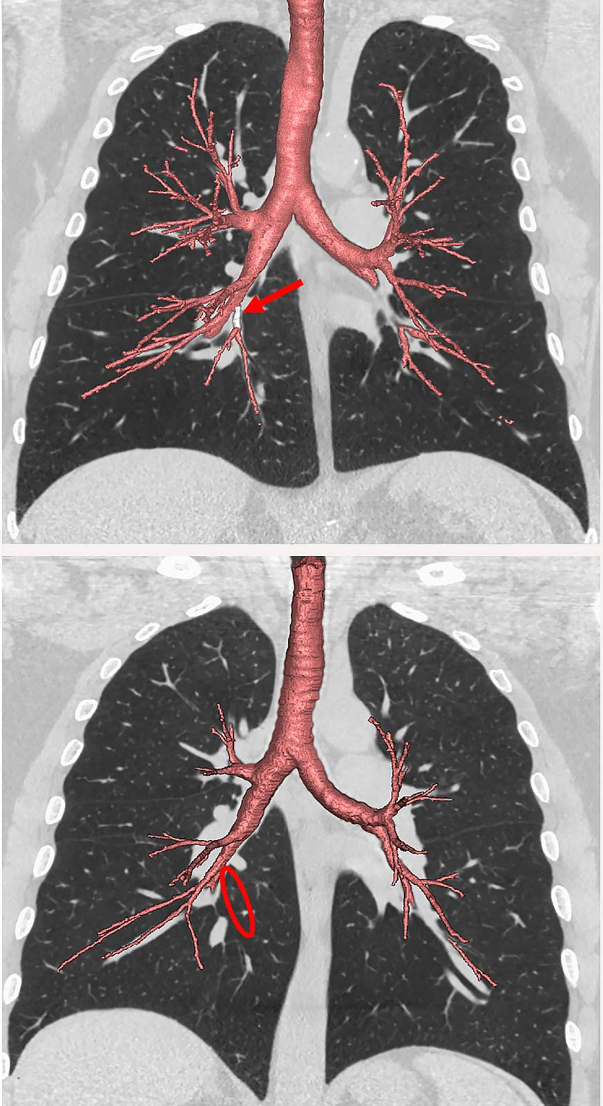 Images of the lungs highlighting the airway branches