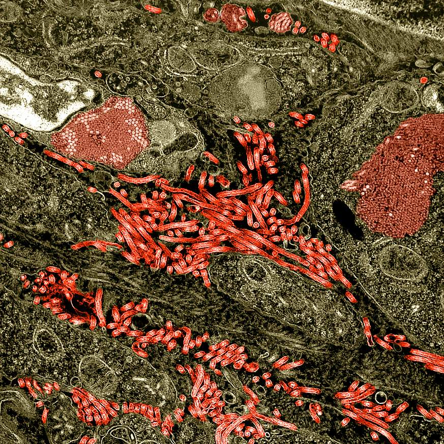 Colorized transmission electron micrograph of the ovary from a nonhuman primate infected with Ebola virus.