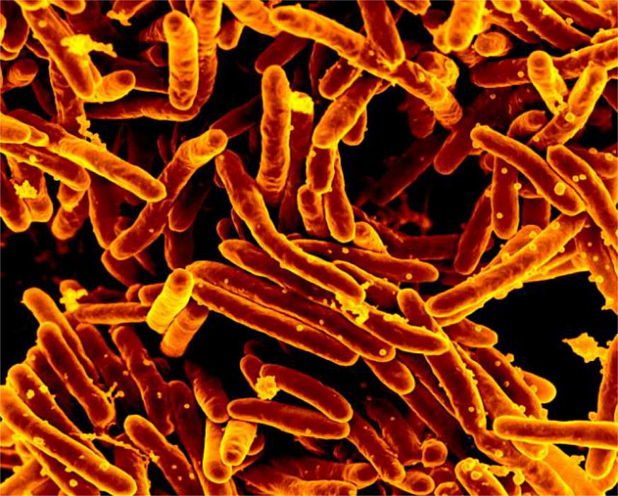 Image of tuberculosis-causing bacteria