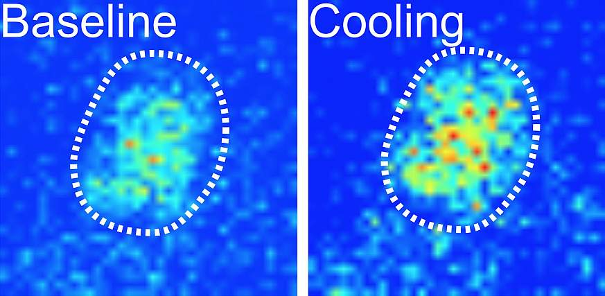 Image showing cooling activity in fly brain