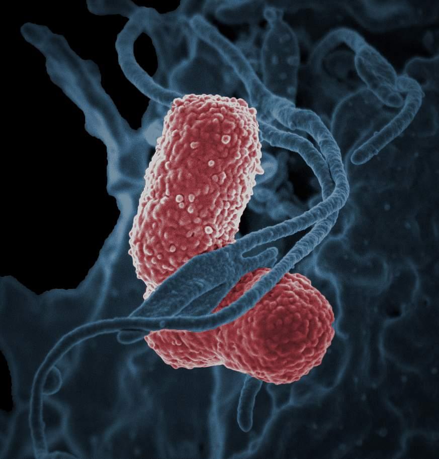 Image of Klebsiella bacteria.