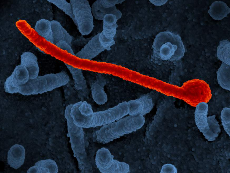 Scanning electron micrograph of Ebola virus Makona (in red) from the West African epidemic shown on surface of Vero cells (blue).