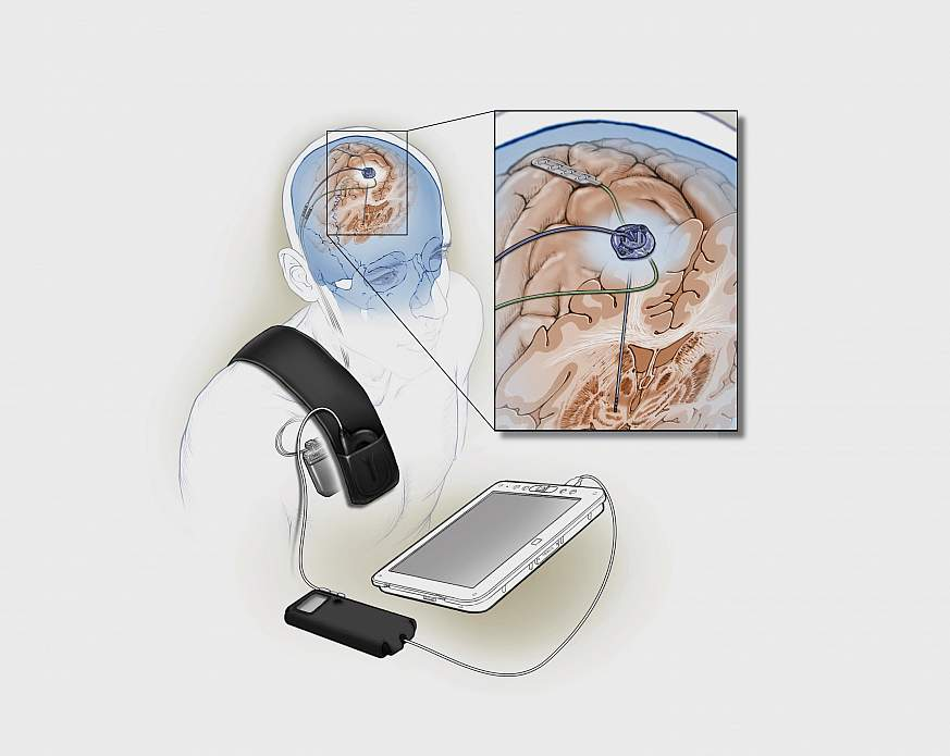 Image of Implanted deep brain stimulation device