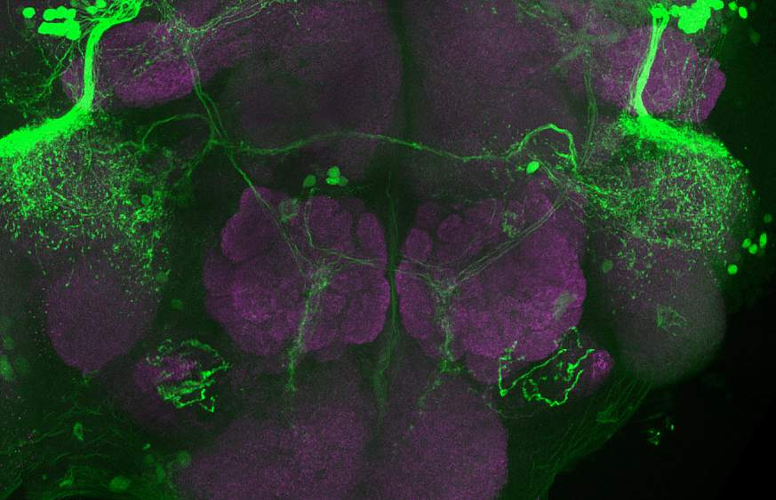 Image of a brain scan of a fruit fly