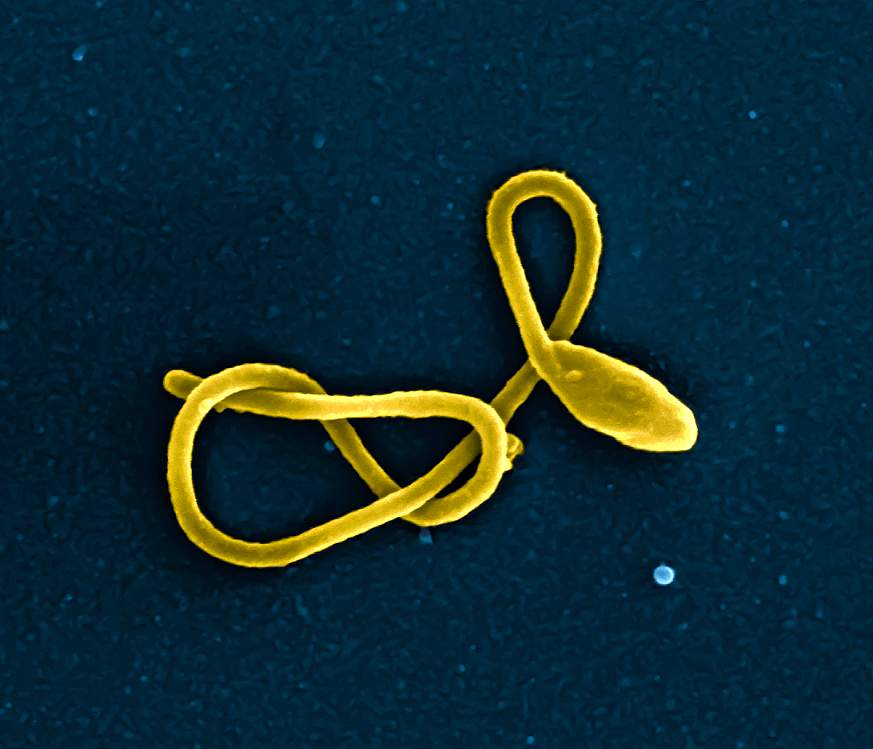 Image of Ebola virus particle