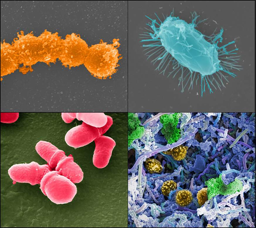 : Microscopic images of bacteri
