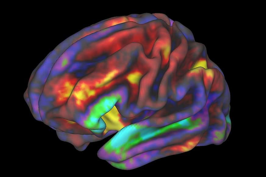 fMRI image of preteen brain.