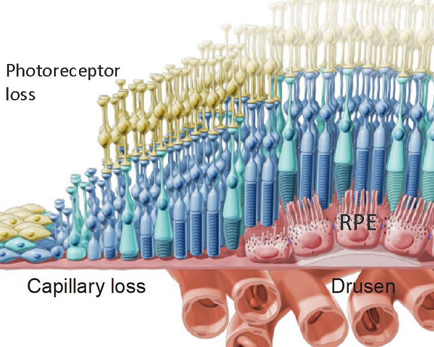 Dry AMD is accompanied by drusen deposits and the degeneration of the retinal pigment epithelium (RPE) and subsequent loss of the light-sensing photoreceptors and the capillary network called the choriocapillaris.