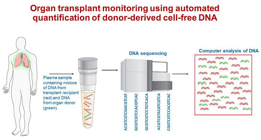 Illustration of blood test for early detection of severe lung-transplant rejection.