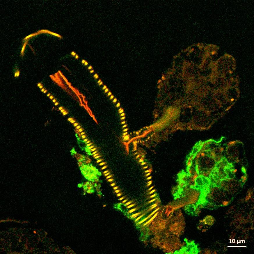 Microscopic image of a tick salivary gland