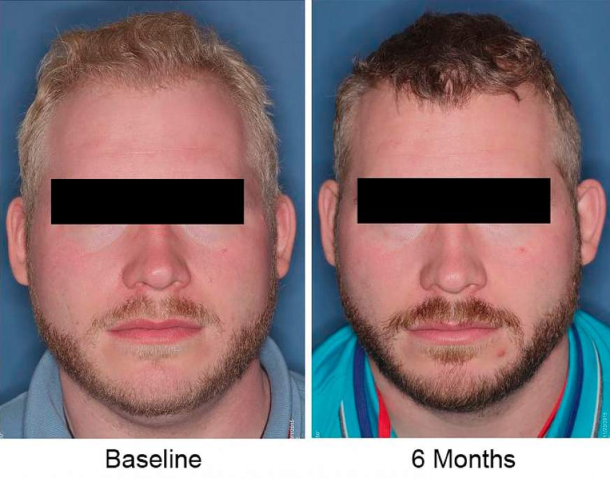 Photos of study participant with pale hair, left, and darker hair, right.