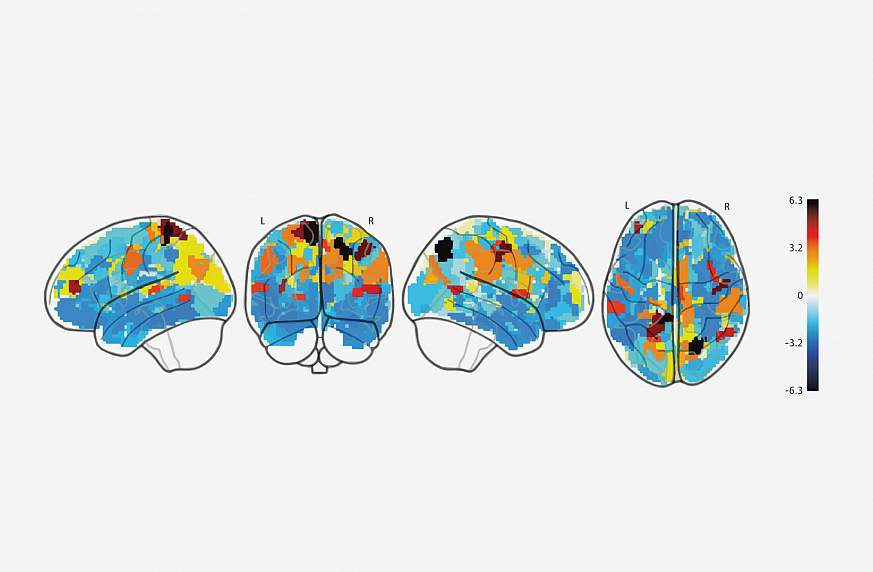 Brain Differences Seen In Children With >> Nih Study Reveals Differences In Brain Activity In Children With