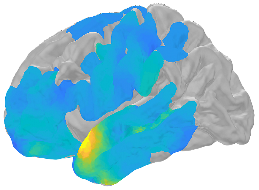 Computer-generated brain scan.