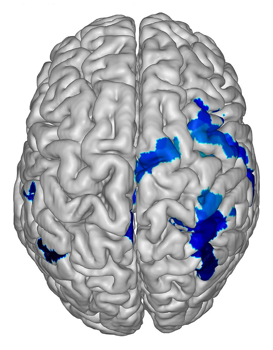 Computer generated image of a human brain.