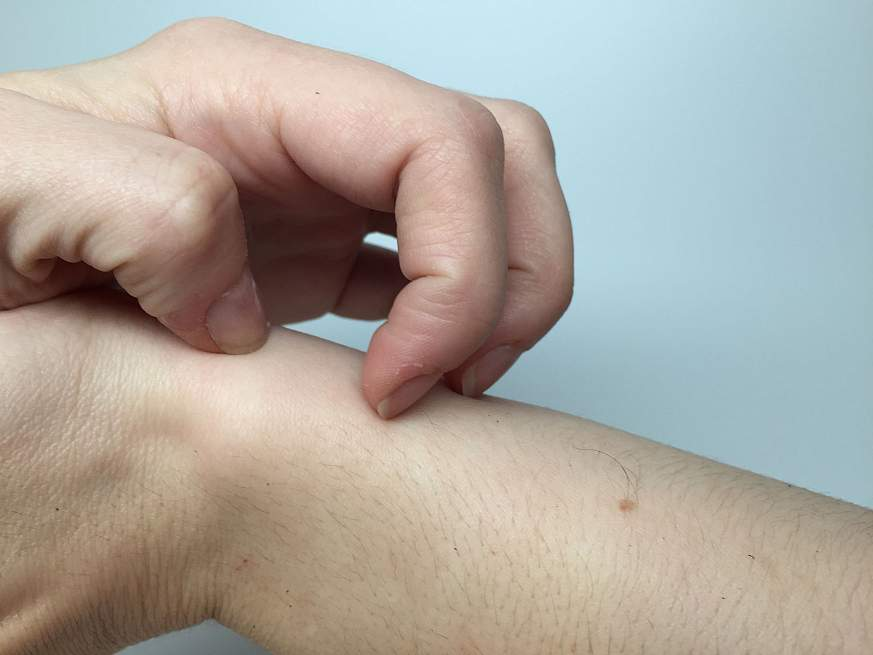Image of a woman's hand scratching her arm
