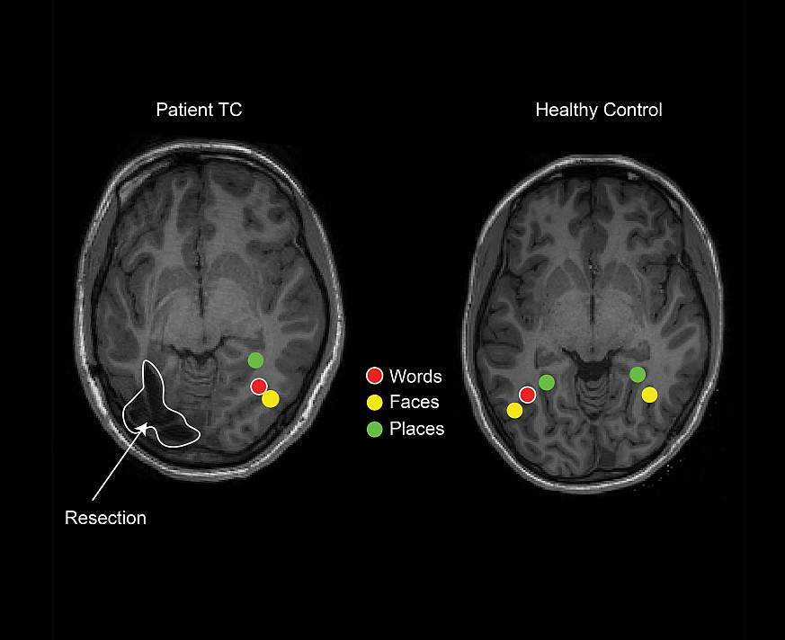 2D MRI brain scans of patient TC and a healthy control child reveal word, place, and face specific regions. Patient TC shows all three on the right, and resected region on the left. Healthy control has all three on the left, plus face and place on the rig