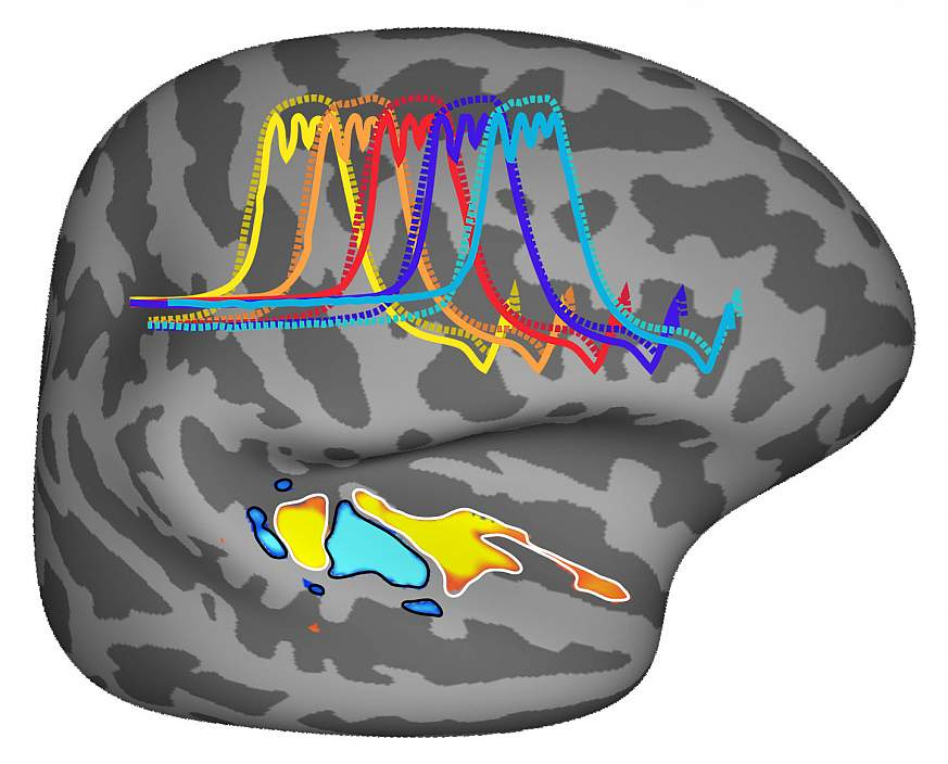 Tuned for Musical Pitch: NIH-funded scientists found that our brains may be uniquely sensitive to pitch, the harmonic sounds we hear when listening to speech or music.
