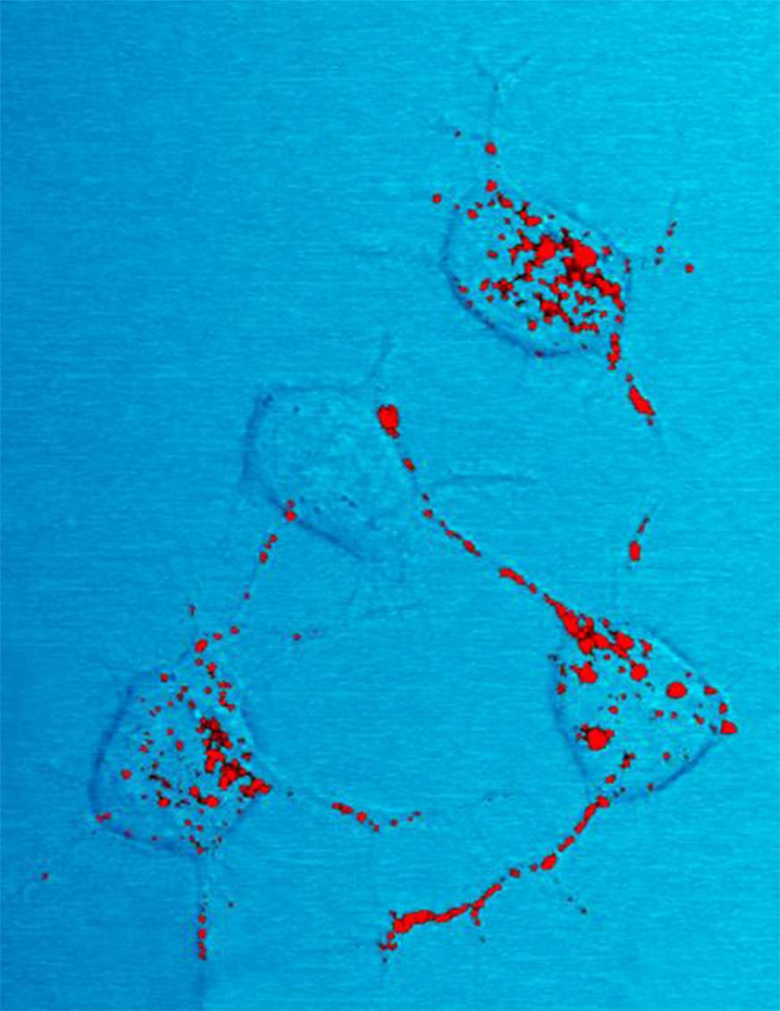 Prion protein, shown in red.